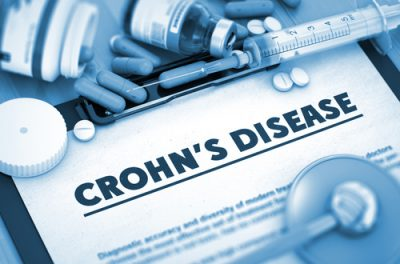 Encouraging New Treatment for Crohn's Disease